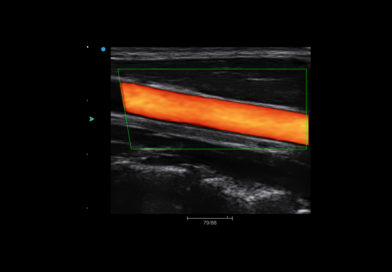 sonidofour_screen_2-carotid-color-mode